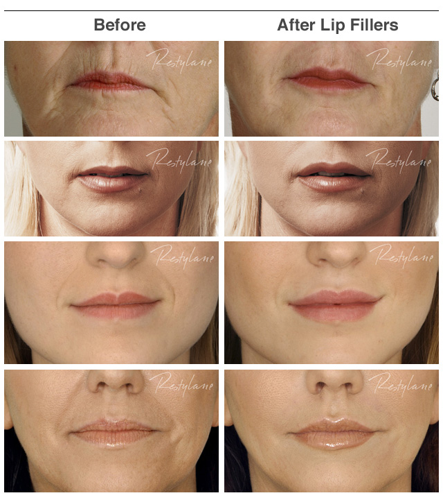 before_after_lip_fillers